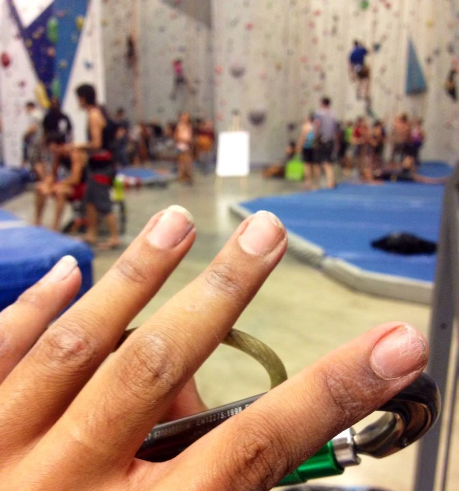 Fingers raw after my first night climbing.